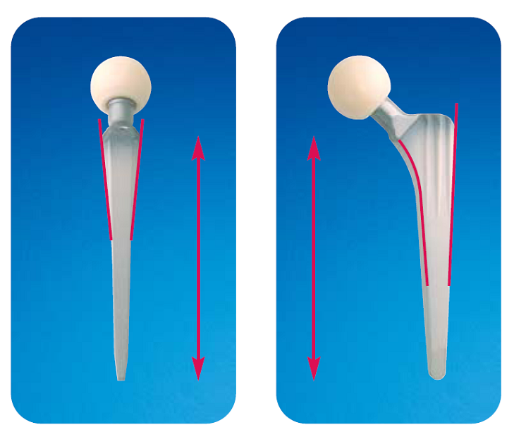 Тотальный эндопротез тазобедренного сустава бесцементной фиксации тибетская мазь для суставов